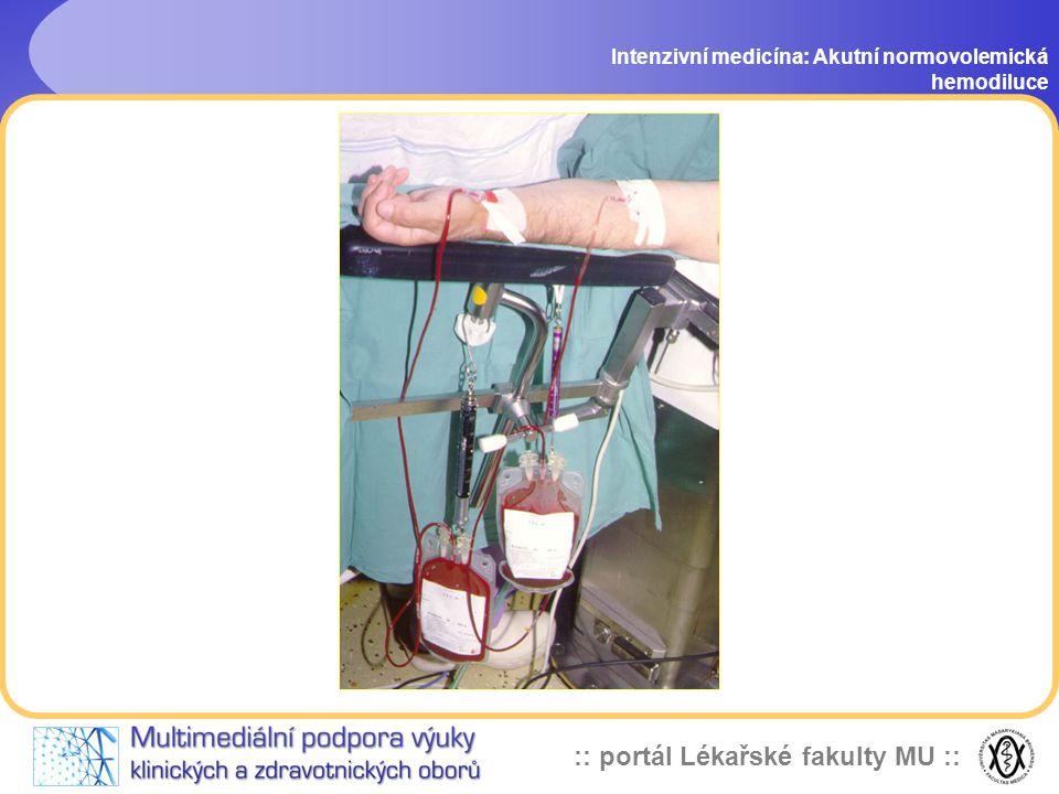 :: portál Lékařské fakulty MU :: Intenzivní medicína: Akutní normovolemická hemodiluce