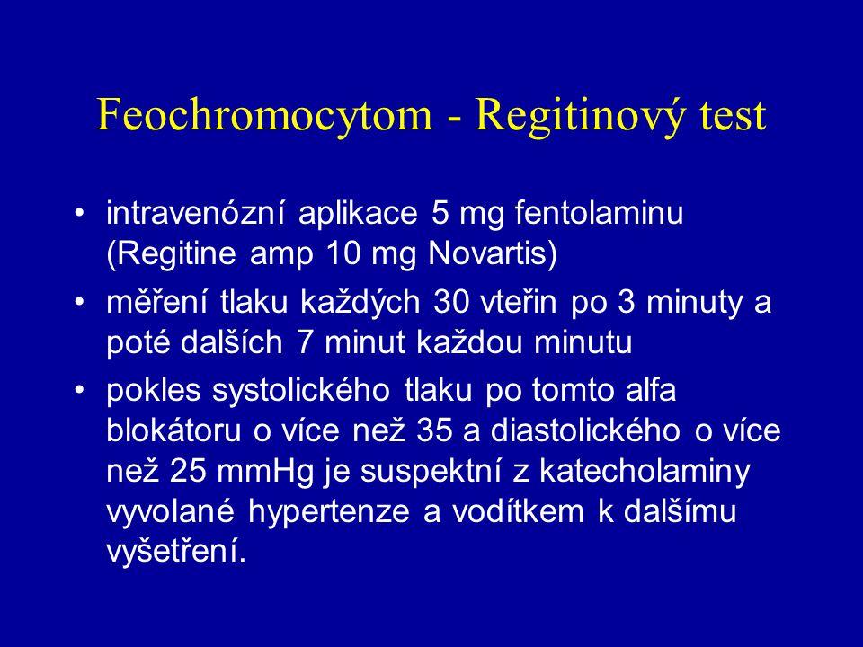 Feochromocytom - diagnóza nemocný může (v krajním případě) užívat diuretika, ACE inhibitory a inhibitory kalciového kanálu nemá-li nemocný během sběru