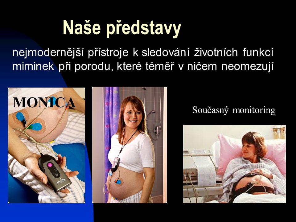 Naše představy nejmodernější přístroje k sledování životních funkcí miminek při porodu, které téměř v ničem neomezují MONICA Současný monitoring