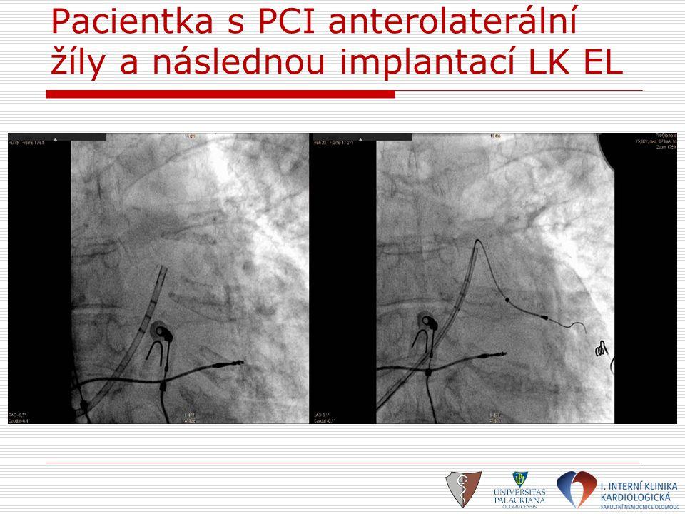 Pacientka s PCI anterolaterální žíly a následnou implantací LK EL