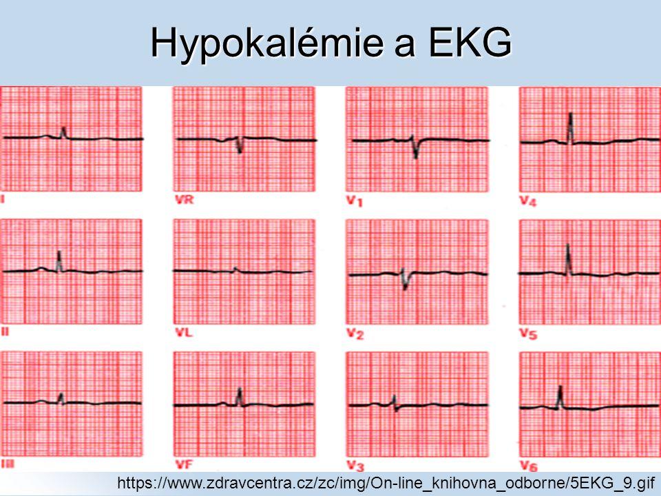 Hypokalémie a EKG https://www.zdravcentra.cz/zc/img/On-line_knihovna_odborne/5EKG_9.gif