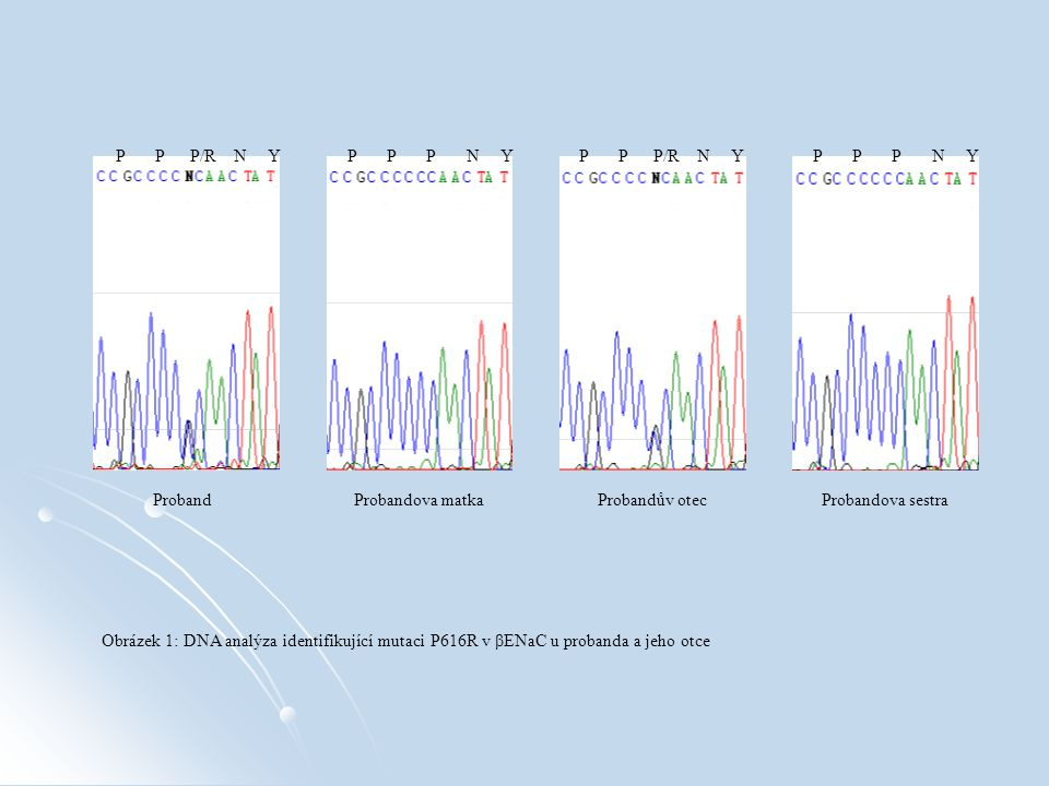 P P P/R N Y P P P N Y ProbandProbandova matkaProbandův otecProbandova sestra Obrázek 1: DNA analýza identifikující mutaci P616R v βENaC u probanda a jeho otce