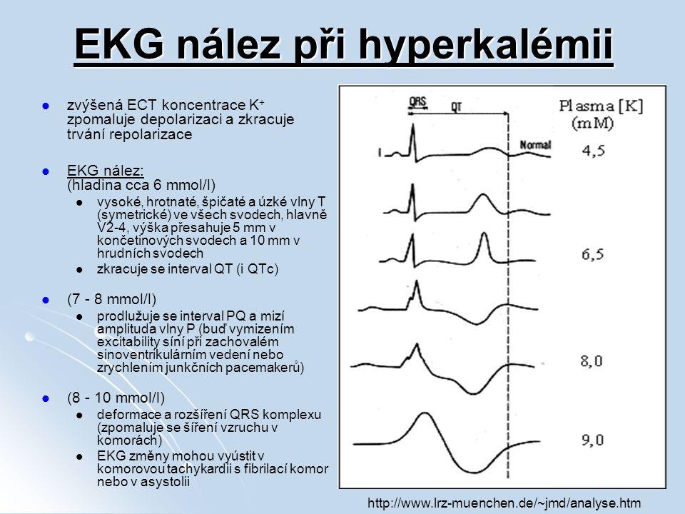 EKG nález při hyperkalémii zvýšená ECT koncentrace K + zpomaluje depolarizaci a zkracuje trvání repolarizace EKG nález: (hladina cca 6 mmol/l) vysoké,