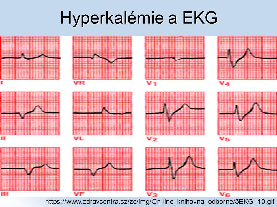 Hyperkalémie a EKG https://www.zdravcentra.cz/zc/img/On-line_knihovna_odborne/5EKG_10.gif