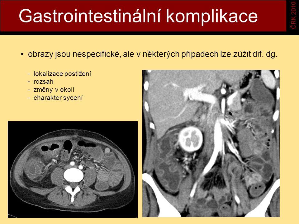 Gastrointestinální komplikace ČRK 2010 obrazy jsou nespecifické, ale v některých případech lze zúžit dif.