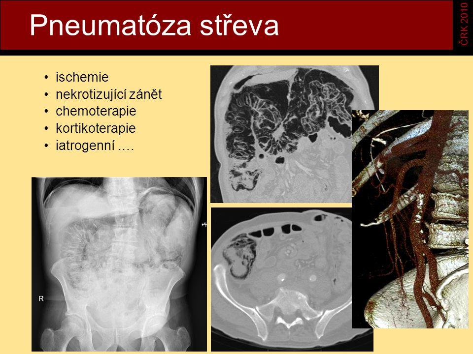 Pneumatóza střeva ČRK 2010 ischemie nekrotizující zánět chemoterapie kortikoterapie iatrogenní ….