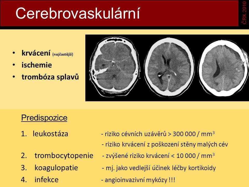 Cerebrovaskulární ČRK 2010 krvácení (nejčastější) ischemie trombóza splavů 1.