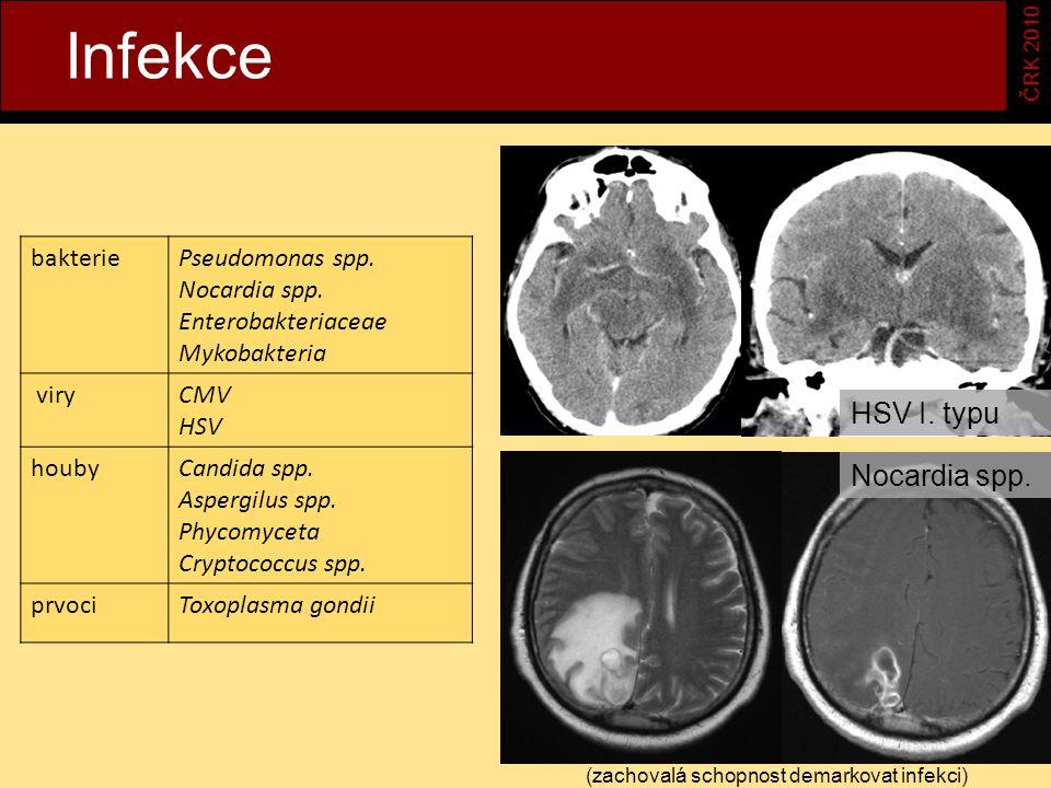 Infekce ČRK 2010 bakteriePseudomonas spp.Nocardia spp.