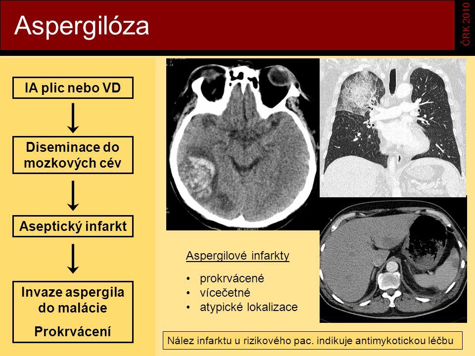 Aspergilóza ČRK 2010 IA plic nebo VD Diseminace do mozkových cév Aseptický infarkt Invaze aspergila do malácie Prokrvácení prokrvácené vícečetné atypické lokalizace Aspergilové infarkty Nález infarktu u rizikového pac.