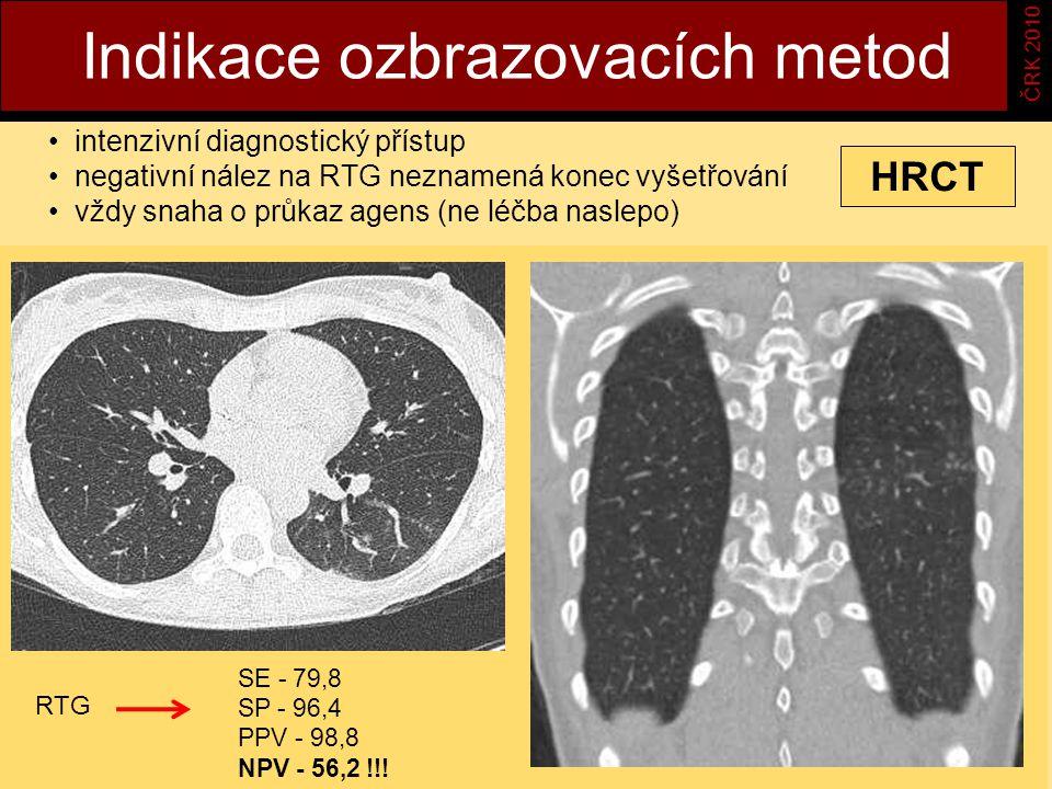 Indikace ozbrazovacích metod ČRK 2010 intenzivní diagnostický přístup negativní nález na RTG neznamená konec vyšetřování vždy snaha o průkaz agens (ne léčba naslepo) HRCT SE - 79,8 SP - 96,4 PPV - 98,8 NPV - 56,2 !!.