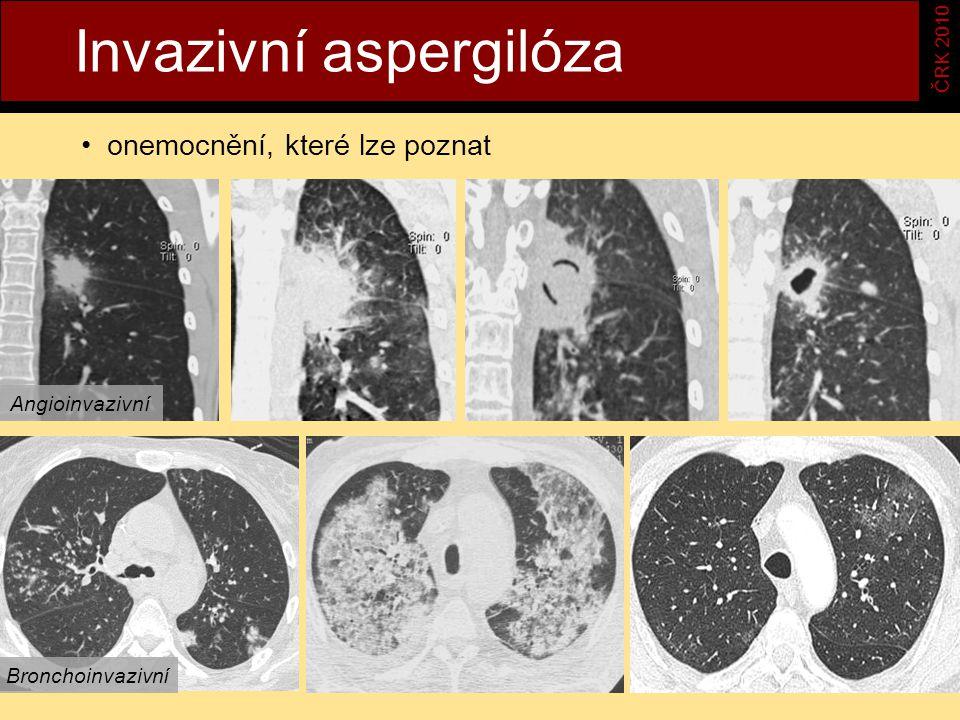 Invazivní aspergilóza ČRK 2010 onemocnění, které lze poznat Angioinvazivní Bronchoinvazivní