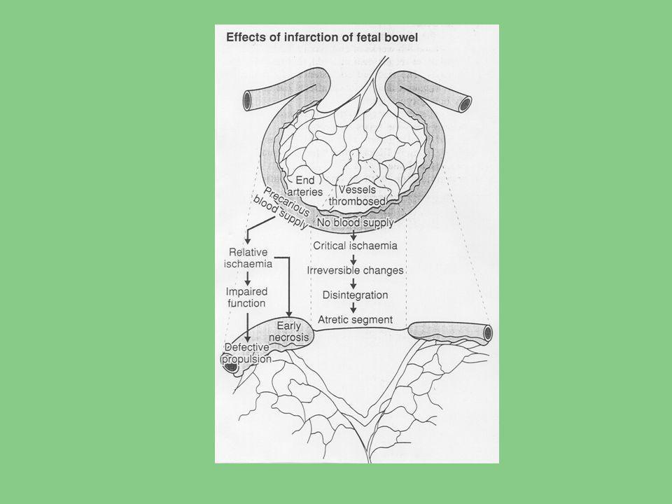 Enterální výživa ELBW a VLBWI Krmit či nekrmit není otázkou, otázkou je kdy, čím a jak. R.J.Cooke