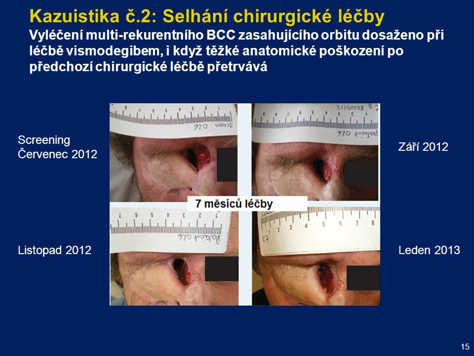 Kazuistika č.2: Selhání chirurgické léčby Vyléčení multi-rekurentního BCC zasahujícího orbitu dosaženo při léčbě vismodegibem, i když těžké anatomické