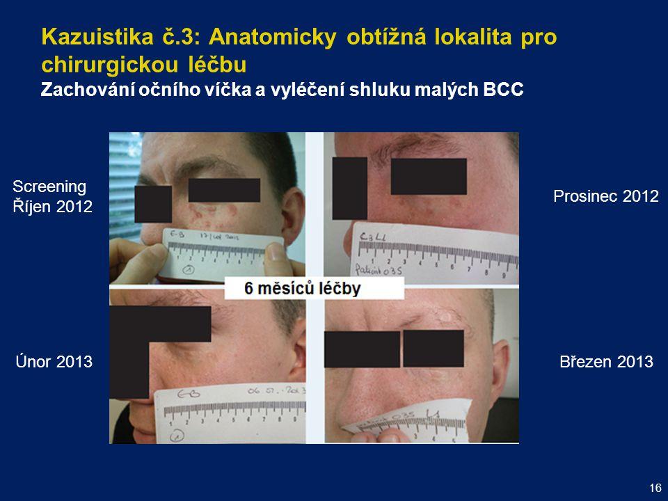Kazuistika č.3: Anatomicky obtížná lokalita pro chirurgickou léčbu Zachování očního víčka a vyléčení shluku malých BCC 16 Screening Říjen 2012 Prosine