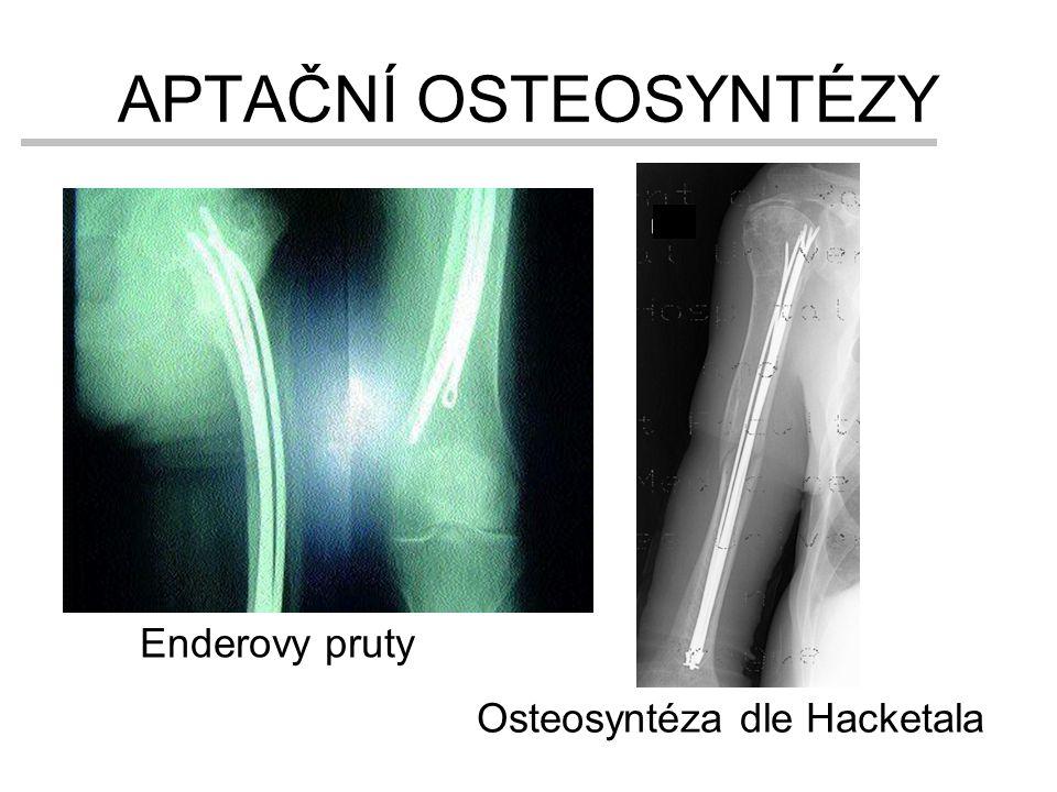APTAČNÍ OSTEOSYNTÉZY Enderovy pruty Osteosyntéza dle Hacketala