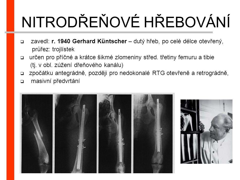NITRODŘEŇOVÉ HŘEBOVÁNÍ  zavedl: r. 1940 Gerhard Küntscher – dutý hřeb, po celé délce otevřený, průřez: trojlístek  určen pro příčné a krátce šikmé z