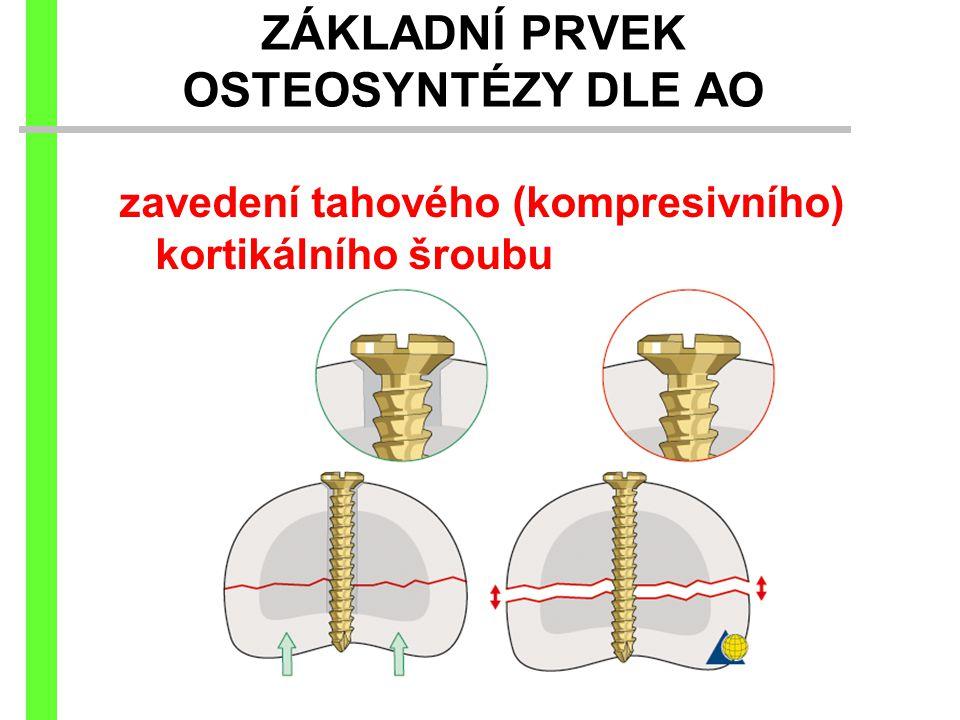 ZÁKLADNÍ PRVEK OSTEOSYNTÉZY DLE AO zavedení tahového (kompresivního) kortikálního šroubu