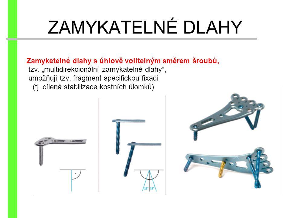 """Zamyketelné dlahy s úhlově volitelným směrem šroubů, tzv. """"multidirekcionální zamykatelné dlahy"""", umožňují tzv. fragment specifickou fixaci (tj. cílen"""