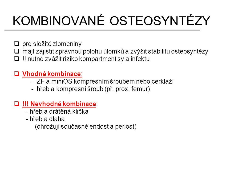 KOMBINOVANÉ OSTEOSYNTÉZY  pro složité zlomeniny  mají zajistit správnou polohu úlomků a zvýšit stabilitu osteosyntézy  !! nutno zvážit riziko kompa