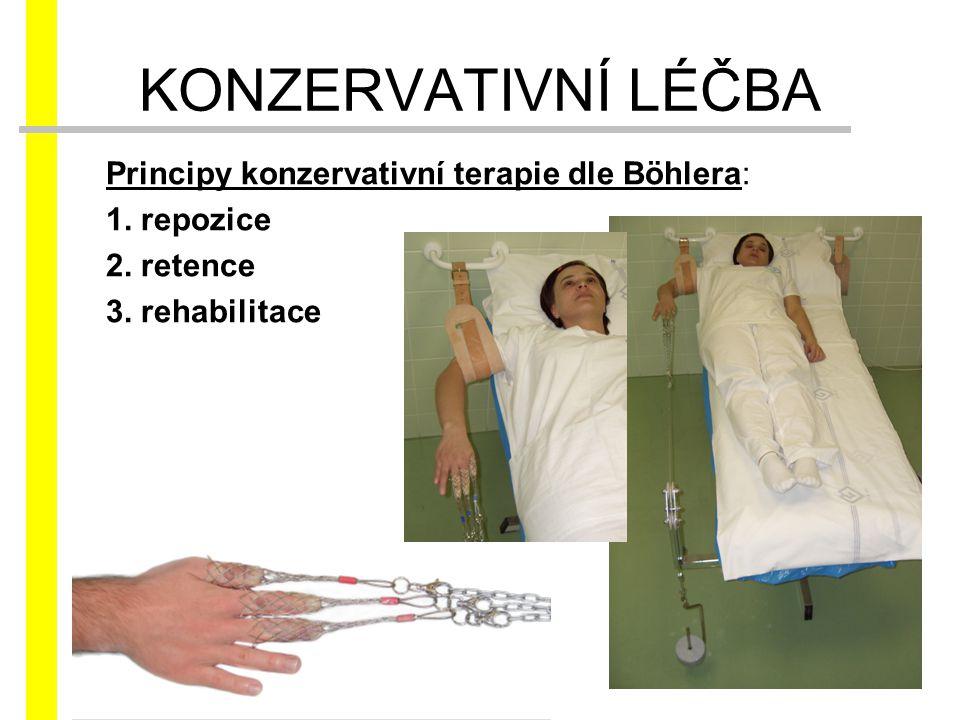 Principy konzervativní terapie dle Böhlera: 1. repozice 2. retence 3. rehabilitace KONZERVATIVNÍ LÉČBA