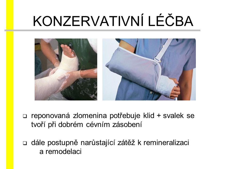  reponovaná zlomenina potřebuje klid + svalek se tvoří při dobrém cévním zásobení  dále postupně narůstající zátěž k remineralizaci a remodelaci KON