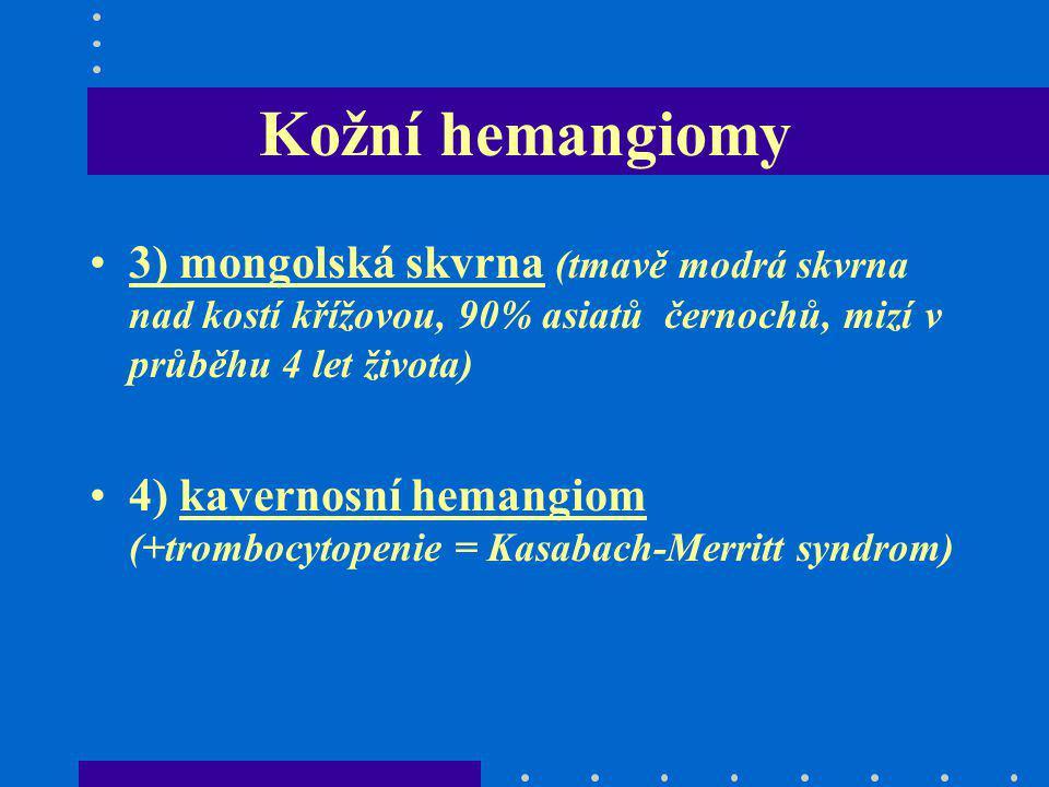 Kožní hemangiomy 3) mongolská skvrna (tmavě modrá skvrna nad kostí křížovou, 90% asiatů černochů, mizí v průběhu 4 let života) 4) kavernosní hemangiom
