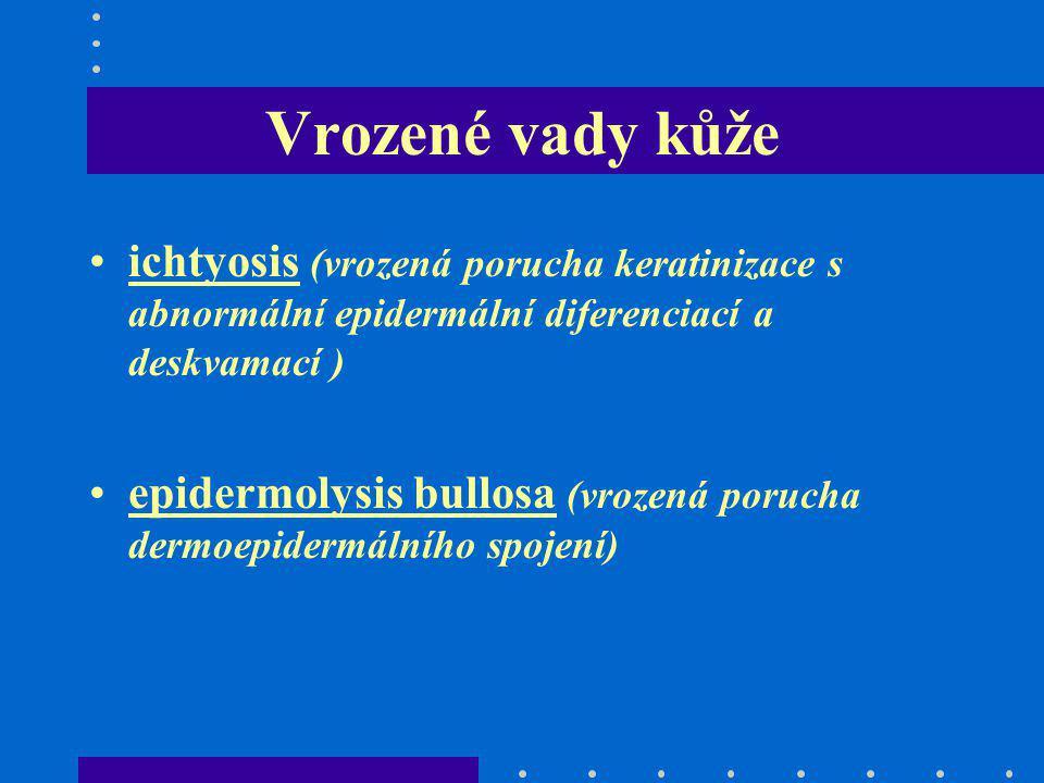 Vrozené vady kůže ichtyosis (vrozená porucha keratinizace s abnormální epidermální diferenciací a deskvamací ) epidermolysis bullosa (vrozená porucha