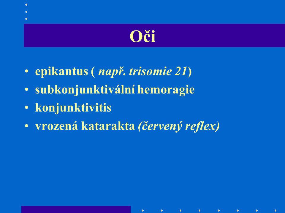 Oči epikantus ( např. trisomie 21) subkonjunktivální hemoragie konjunktivitis vrozená katarakta (červený reflex)