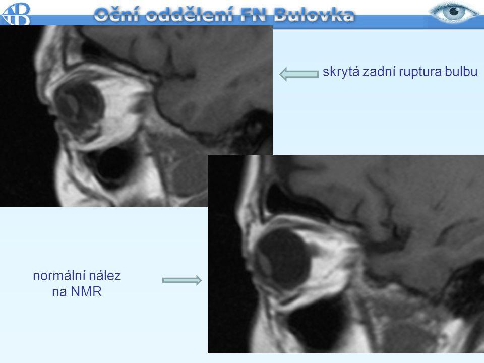 skrytá zadní ruptura bulbu normální nález na NMR