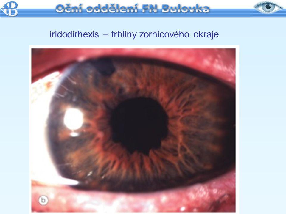 iridodirhexis – trhliny zornicového okraje