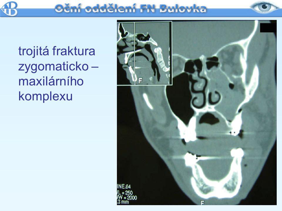 trojitá fraktura zygomaticko – maxilárního komplexu
