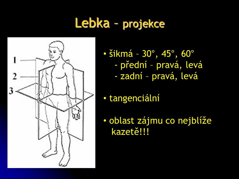 Lebka – projekce šikmá – 30°, 45°, 60° - přední – pravá, levá - zadní – pravá, levá tangenciální oblast zájmu co nejblíže kazetě!!!