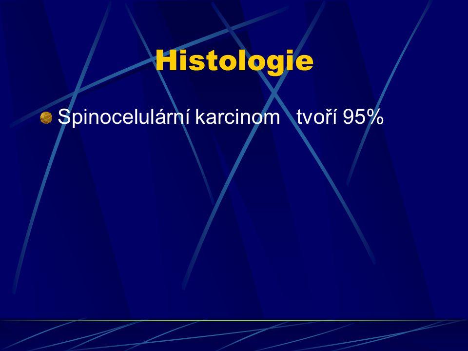 Histologie Spinocelulární karcinom tvoří 95%