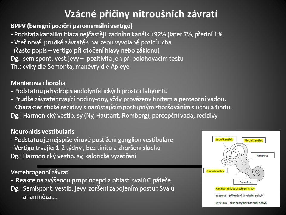 Vzácné příčiny nitroušních závratí BPPV (benigní poziční paroxismální vertigo) - Podstata kanalikolitiaza nejčastěji zadního kanálku 92% (later.7%, př