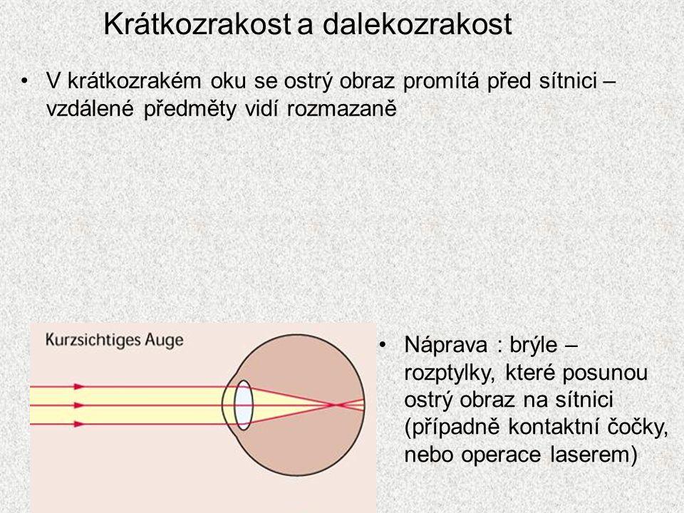 Krátkozrakost a dalekozrakost V dalekozrakém oku se ostrý obraz promítá za sítnici – blízké předměty nevidí ostře Náprava : brýle – spojky, které přiblíží ostrý obraz na sítnici (případně kontaktní čočky)