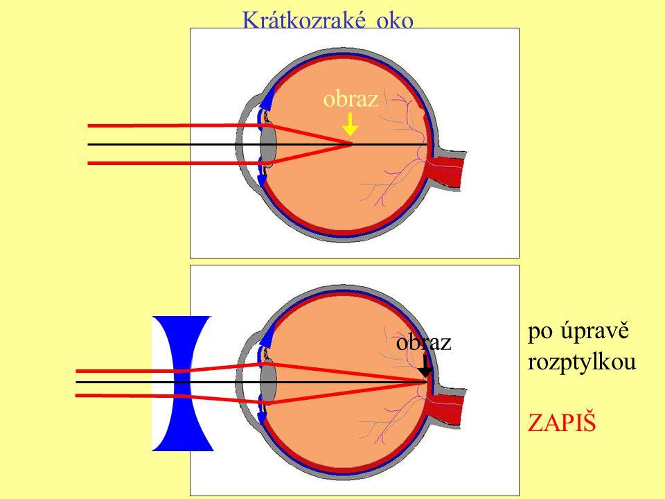 Krátkozraké oko obraz po úpravě rozptylkou ZAPIŠ