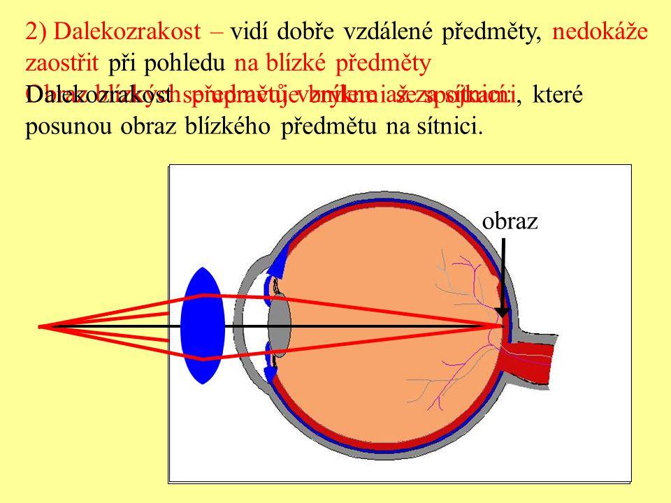2) Dalekozrakost – vidí dobře vzdálené předměty, nedokáže zaostřit při pohledu na blízké předměty Obraz blízkých předmětů vznikne až za sítnicí: Dalek