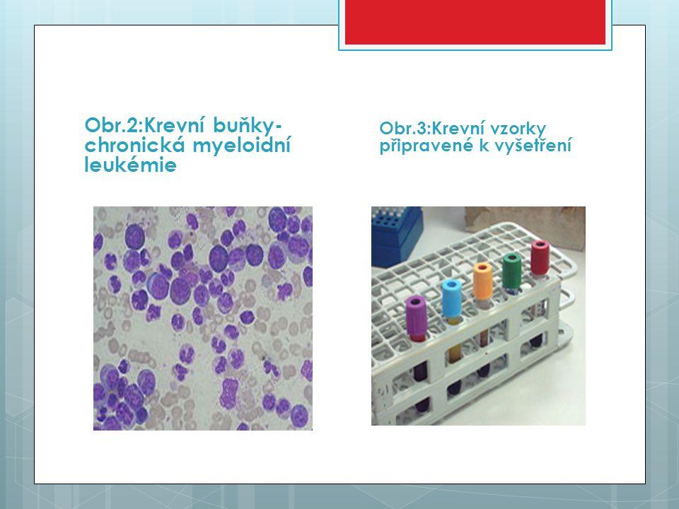 Obr.2:Krevní buňky- chronická myeloidní leukémie Obr.3:Krevní vzorky připravené k vyšetření