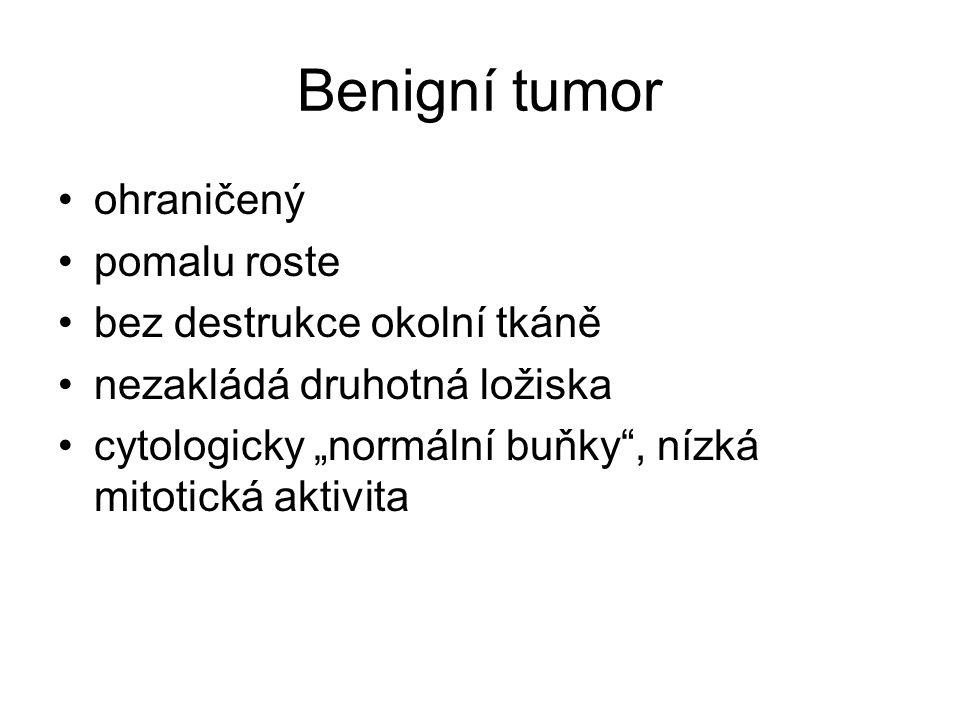 """Benigní tumor ohraničený pomalu roste bez destrukce okolní tkáně nezakládá druhotná ložiska cytologicky """"normální buňky"""", nízká mitotická aktivita"""