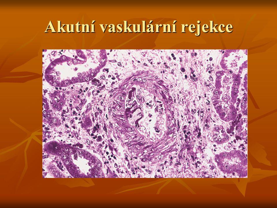 Akutní vaskulární rejekce