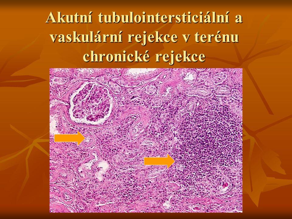 Akutní tubulointersticiální a vaskulární rejekce v terénu chronické rejekce