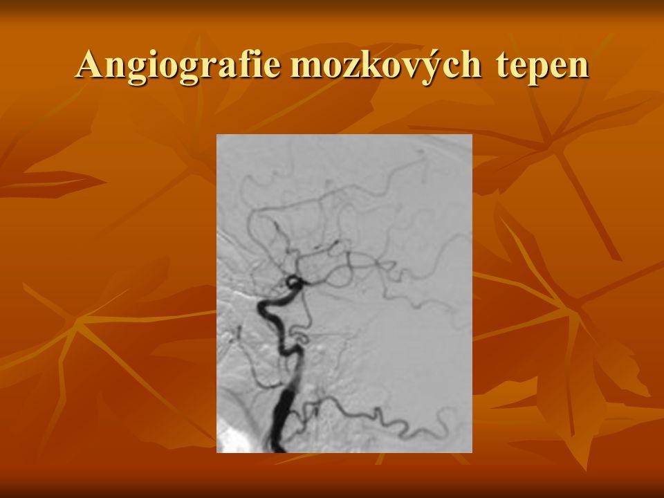 Dárce orgánů v ČR Pro odběr nutná srdeční akce, výjimečně možno použít tzv.