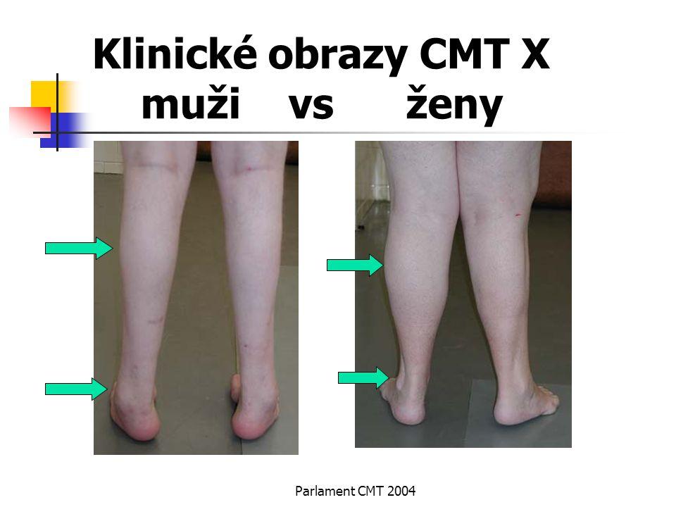 Parlament CMT 2004 Klinické obrazy CMT X muži vs ženy