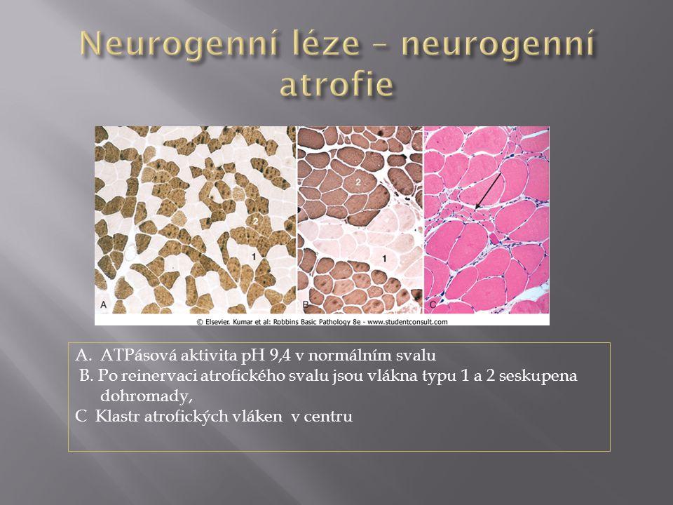 A.ATPásová aktivita pH 9,4 v normálním svalu B. Po reinervaci atrofického svalu jsou vlákna typu 1 a 2 seskupena dohromady, C Klastr atrofických vláke