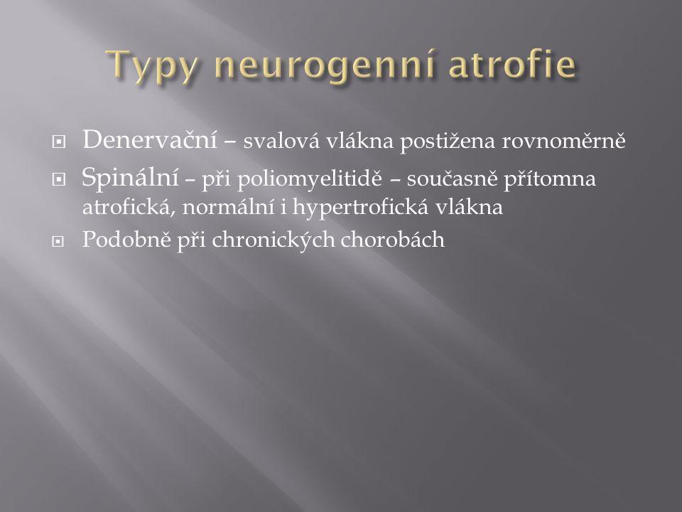  Denervační – svalová vlákna postižena rovnoměrně  Spinální – při poliomyelitidě – současně přítomna atrofická, normální i hypertrofická vlákna  Po
