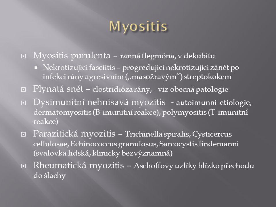  Myositis fibroproductiva (fibrosa, myosclerosis) - náhrada svalů granulační tkání až vazivem, ztuhlost svalů, ženy středního věku (třeba jedna noha)  Proliferativní myositis (obdoba proliferativní fasciitidy) – pseudotumor ramene a trupu dospělých  Myositis ossificans – ve svalu vazivo + pletivová kost (circumscripta traumatica, circumscripta idiopathica, progressiva – všechny svaly)  Nádory svalů včetně fibromatóz - viz nádory měkkých tkání