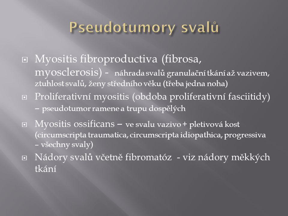  Myositis fibroproductiva (fibrosa, myosclerosis) - náhrada svalů granulační tkání až vazivem, ztuhlost svalů, ženy středního věku (třeba jedna noha)