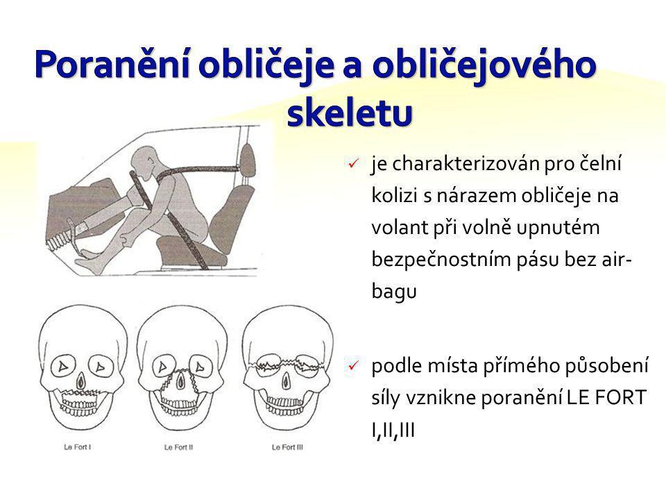 jednoduchý pás přes bedra bez air – bagu nezabrání orofaciálnímu poranění (oblast obličejová včetně např. zubů) poranění krční páteře a bičové trauma