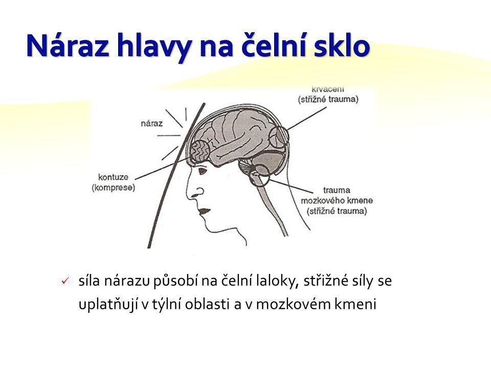 je charakterizován pro čelní kolizi s nárazem obličeje na volant při volně upnutém bezpečnostním pásu bez air- bagu podle místa přímého působení síly