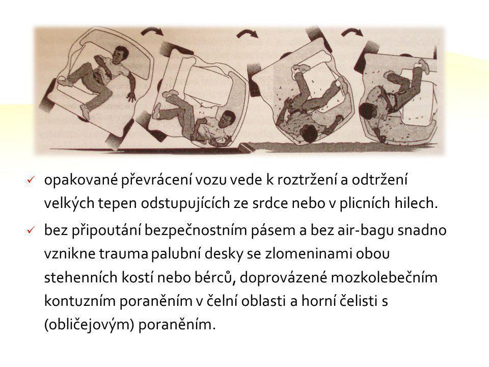 V následujících snímcích uvidíte jaké typy zranění se mohou vyskytnout při dopravní nehodě. Často se setkáváme s polytraumaty Polytrauma Polytrauma -